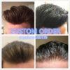 custom-hair-replacement