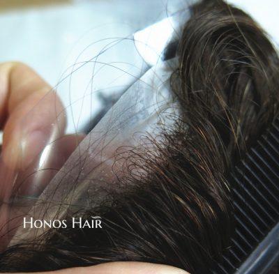 thin skin hair1